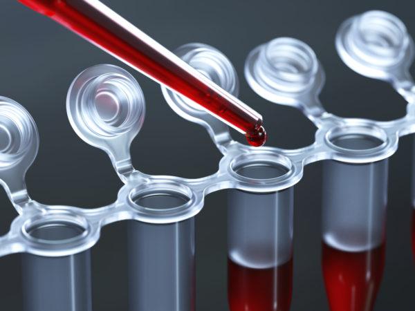 Анализ крови11